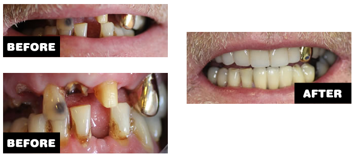 Dental bridge case