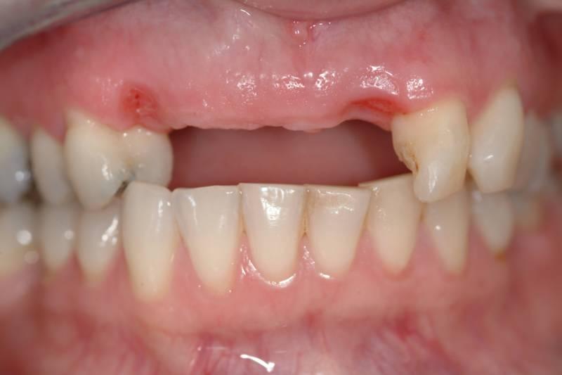 Dental bridges vs Dental implants! | 44 Dental Care ...