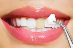 reasons to get dental veneers
